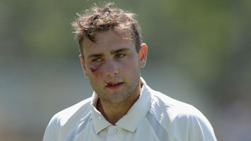 Tom Triffitt took a nasty blow in the face while keeping wicket