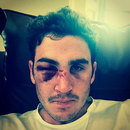 Craig Kieswetter shows his battle scars, July 13, 2014