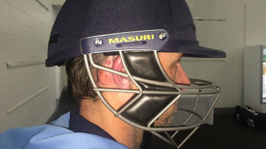 Ben Rohrer wearing the new Masuri helmet, showing where he was struck